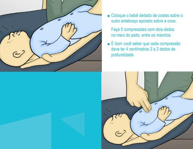 Confira o segundo passo para ajudar um bebê engasgado com leite ou fórmula