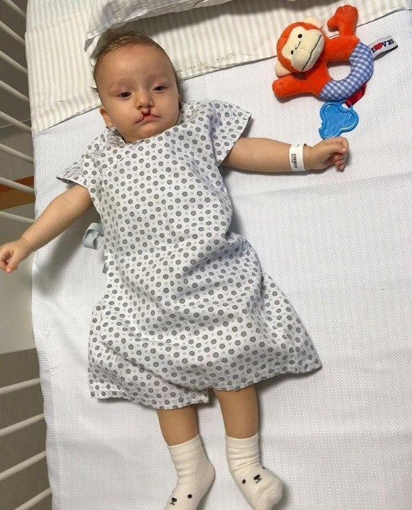 Sobrinho de Ana Hickmann pouco antes de operar lábio leporino