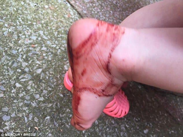 Sandália machuca pé de criança