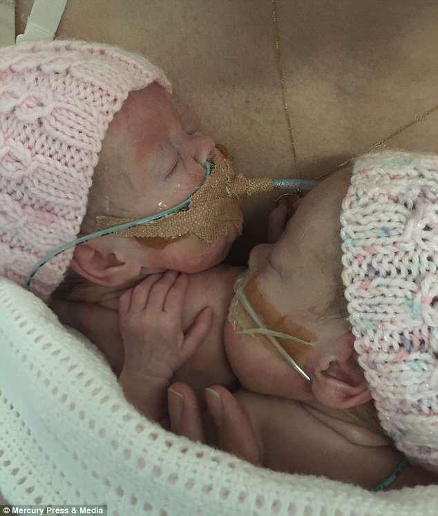 Bebê se despede de gêmea que morreu