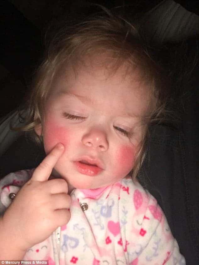 Com alergia de água saiba sobre a bebê Ivy Angerman