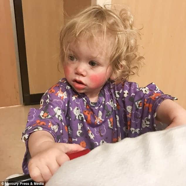 Com rara alergia de água conheça o caso de Ivy Angerman