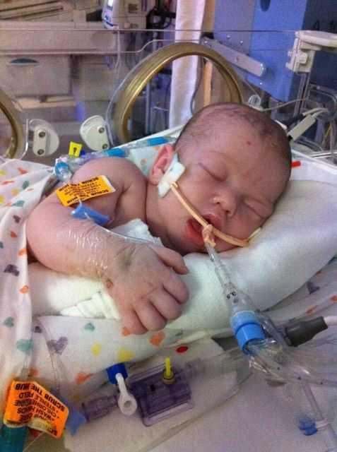 Bebê entra em coma após quadro de desidratação