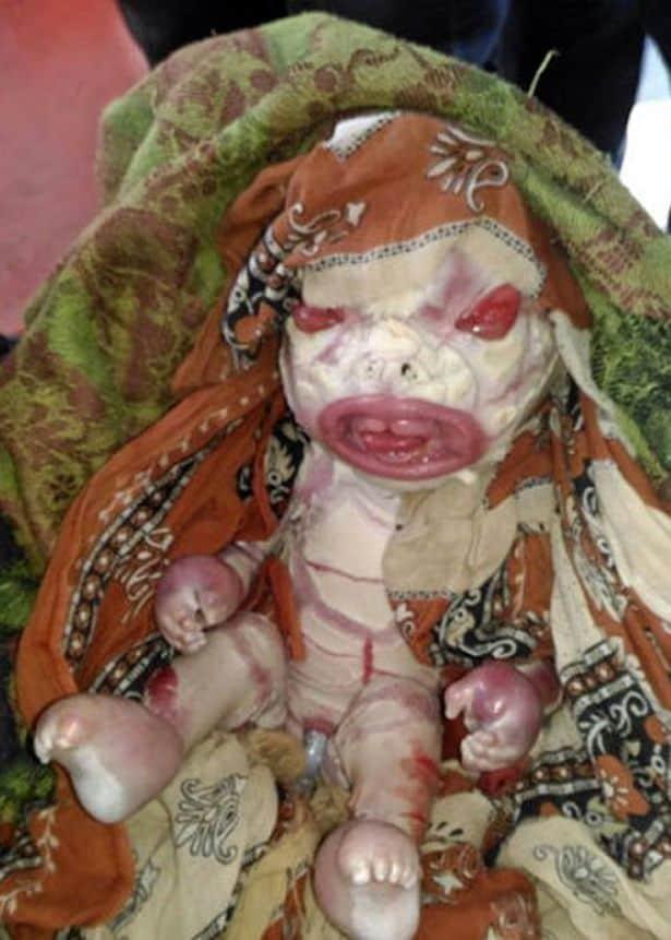 Caso raro de bebê comuma condição chamada Ictiose Arlequim