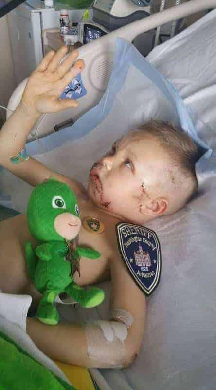 Imagem do pequeno Matthew em sua recuperação