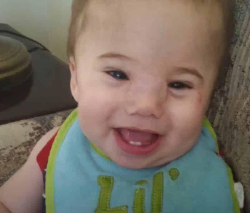 Após a operação o bebê Zakary é só alegria