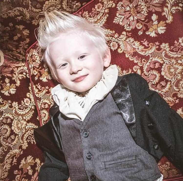 O bebê que nasceu com o cabelo branco, cresceu