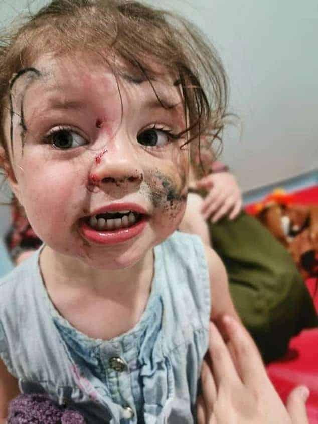 Bebê que foi atacada por um cachorro