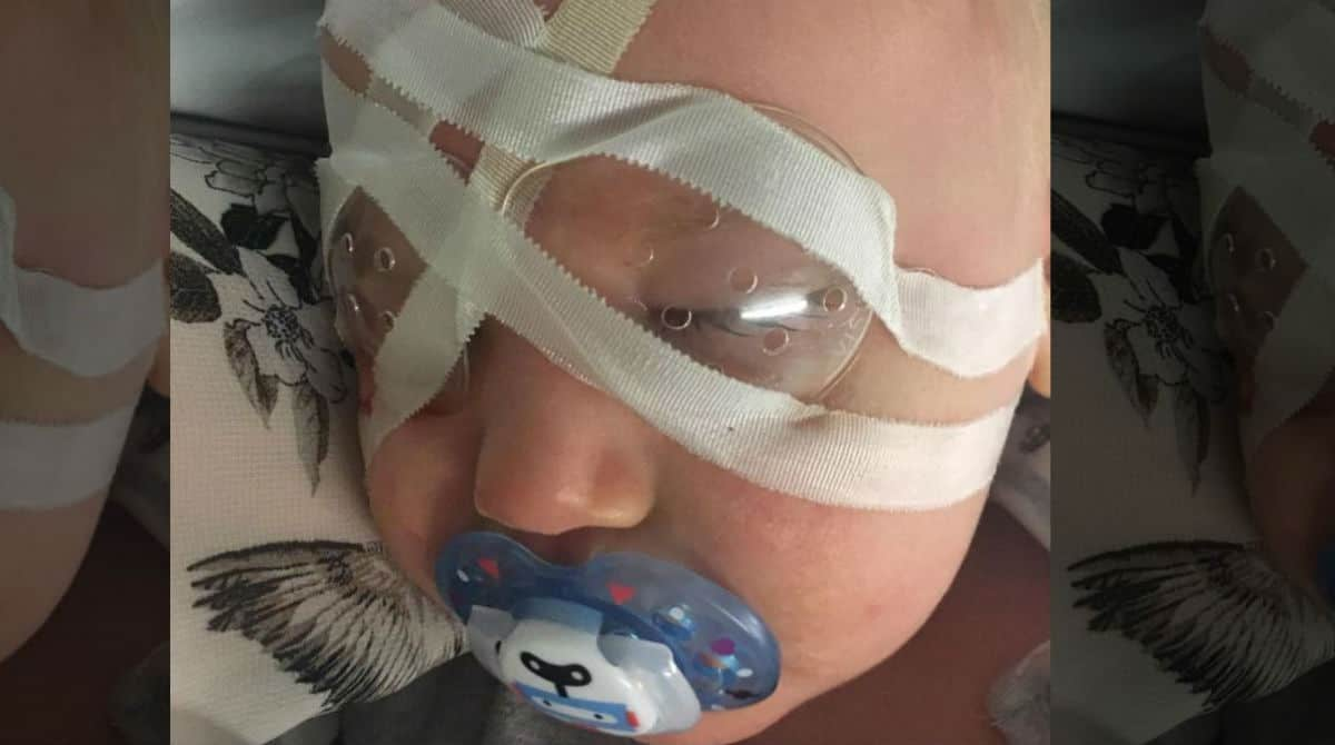 Bebê foi diagnosticado com catarata aos seis meses