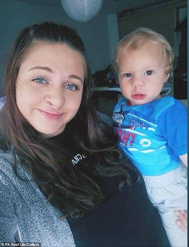 Bebê passou por duas cirurgias para o lábio leporino