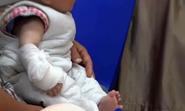 Bebê enrosca o dedo em cabelo e quase tem que amputa-lo