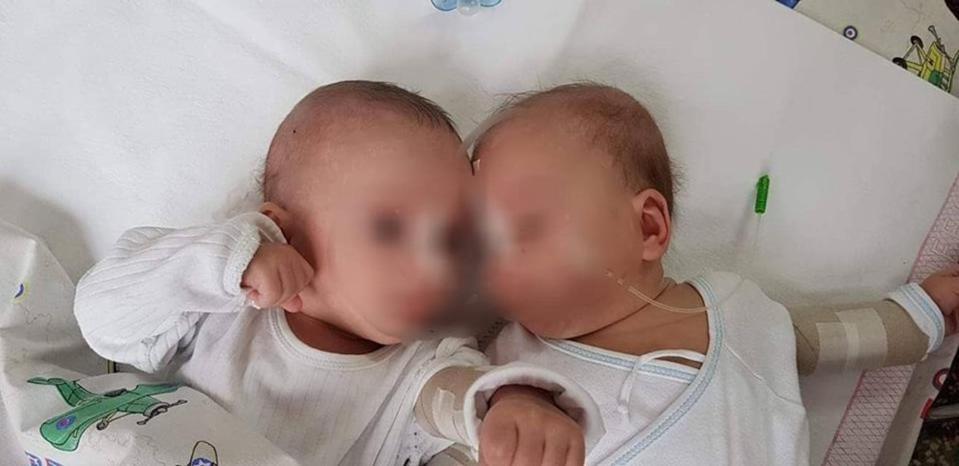 Os gêmeos estavam internados em Zagreb