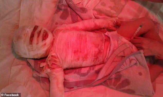 Está no hospital o bebê Ivan