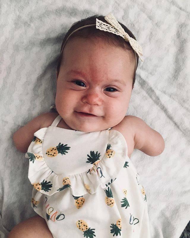 Bebê Ivy que nasceu sem os braços atualmente