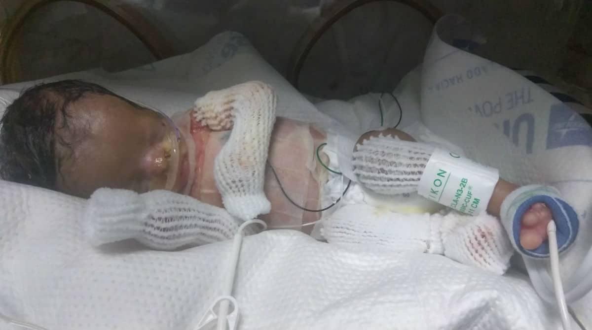 Bebê que nasceu sem pele e foi segurado pela primeira vez por sua mãe