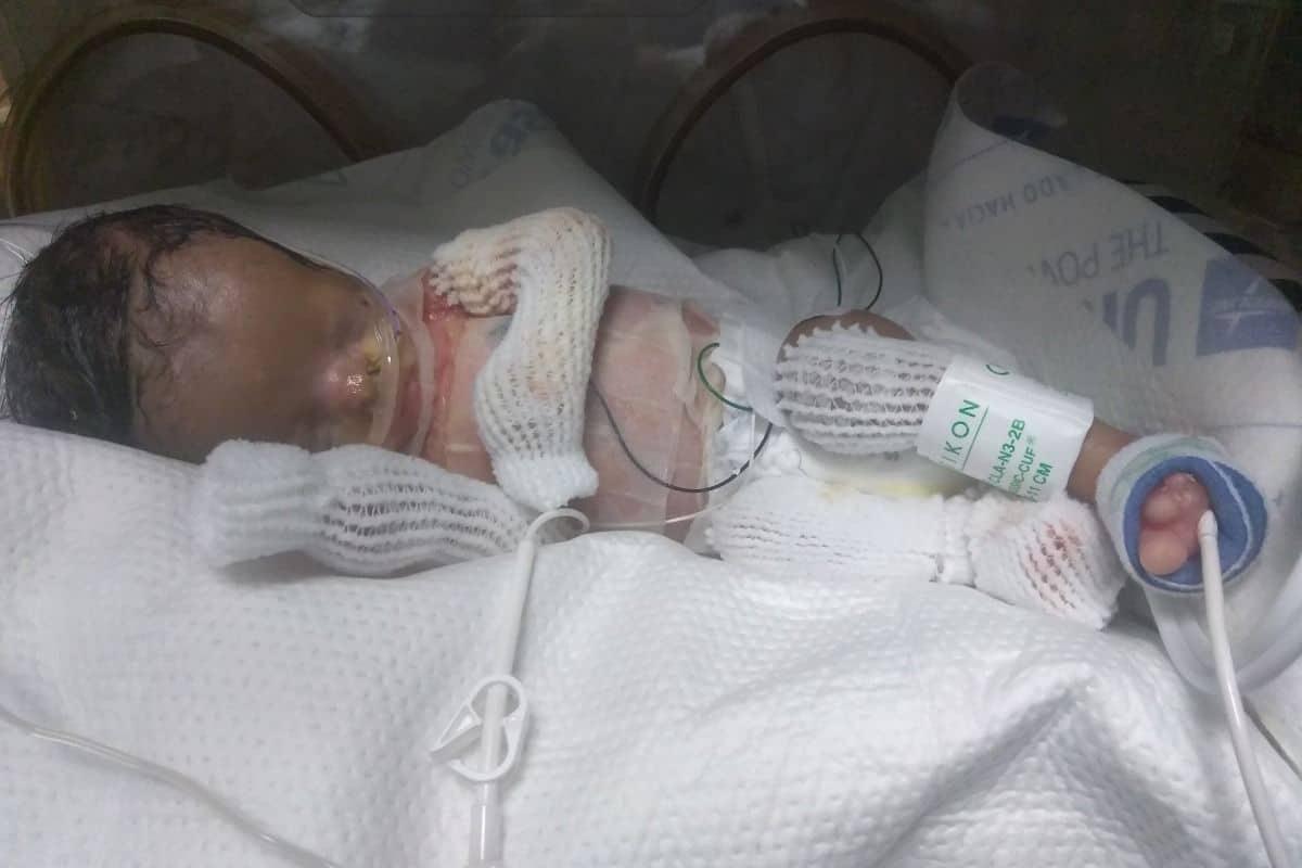 O bebê nasceu sem pele em muitas partes do corpo
