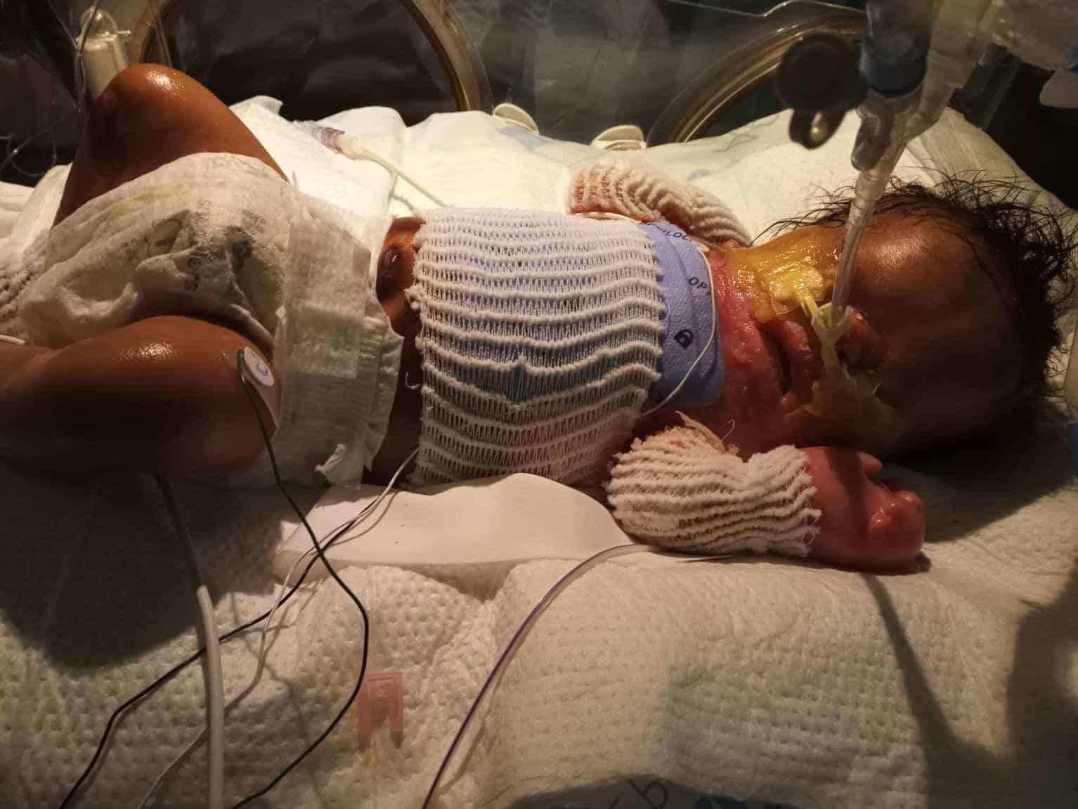 O bebê precisará fazer um sério tratamento médico