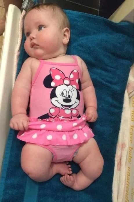 Bebê que nasceu com problema nas pernas e sua mãe desabafou