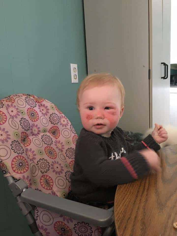 A bebê se recuperou aos poucos das queimaduras