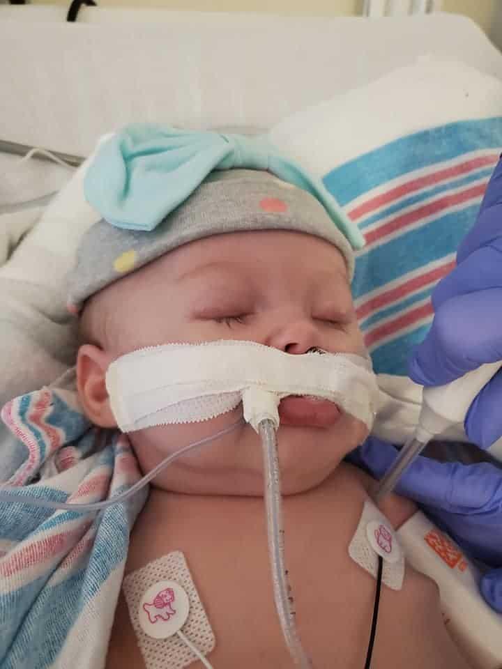 Bebê precisou do respirador após ter Covid-19