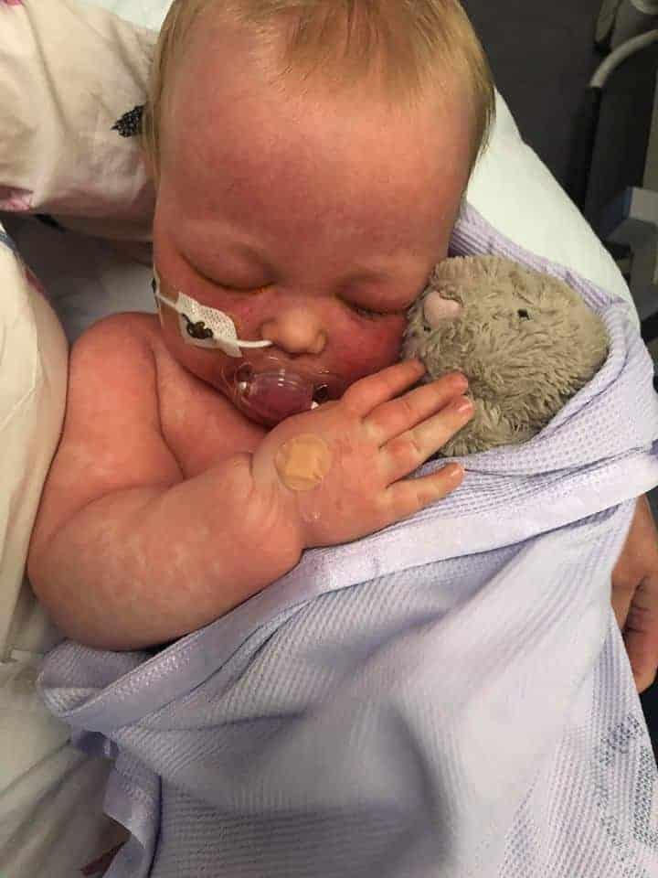 Mãe posta imagens chocantes de bebê com sarampo