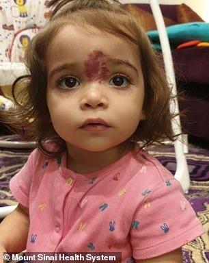 A bebê depois de ter feito a cirurgia