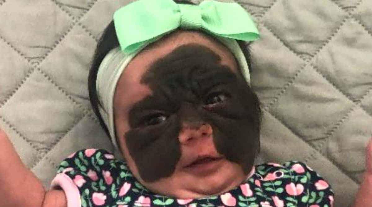 Entenda porque essa bebê nasceu com uma mancha no rosto