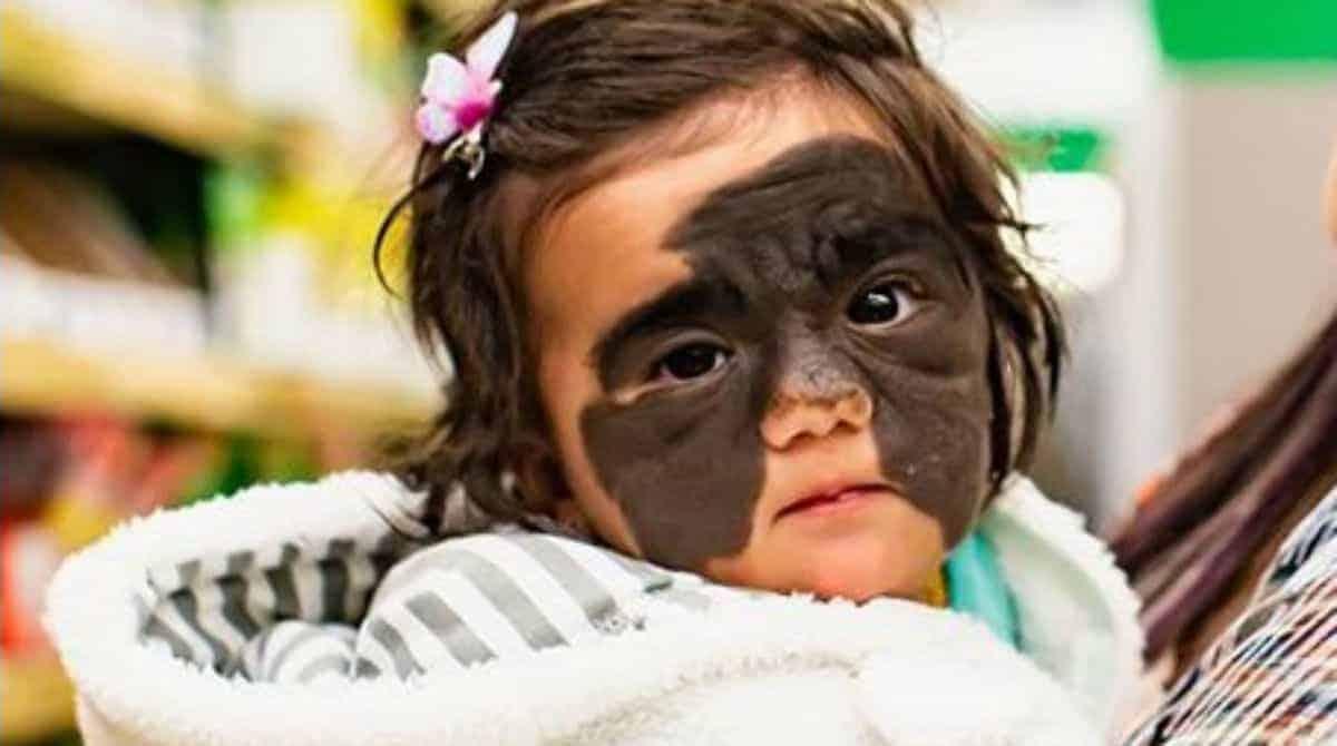 Bebê nasceu com uma mancha no rosto