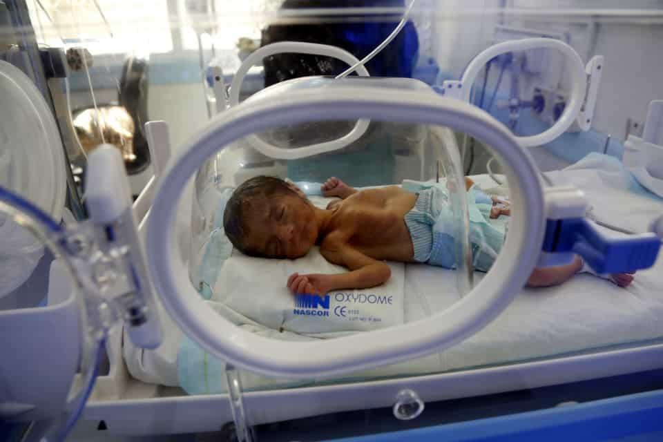 Bebê menino que ficou extremamente desnutrido no conflito