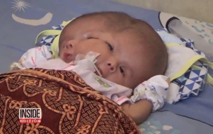 Bebê menino que veio ao mundo com dois rostos