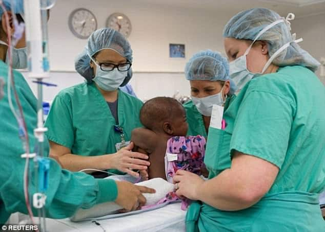 Bebê que nasceu com quatro pernas passa por cirurgia
