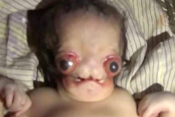 Este bebê nasceu com uma grande má formação