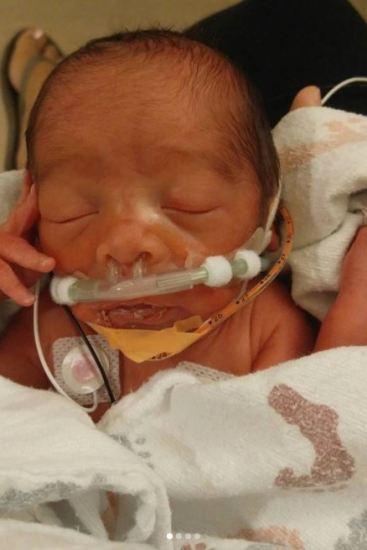 Bebê se recuperando após parto inusitado