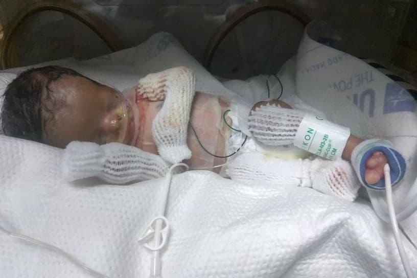 Bebê que nasceu sem pele quando estava internado