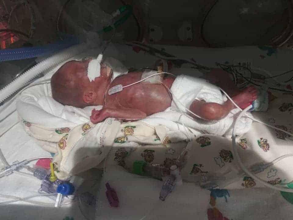 Bebê internada depois do parto extremamente prematuro