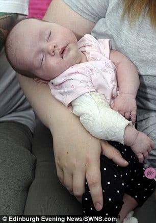 Dormindo no colo da mãe a bebê que foi queimada por cigarro