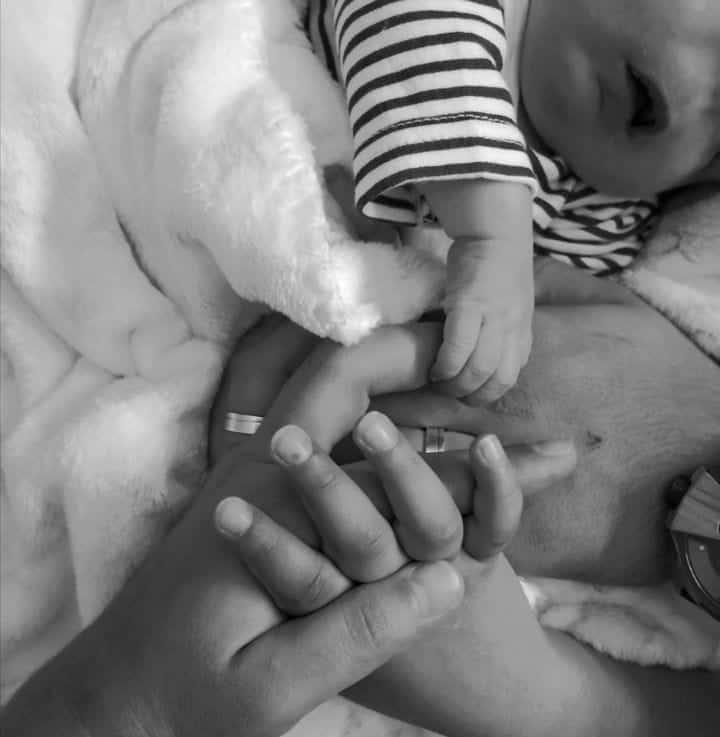 Bebê que nasceu sem rosto junto com seus pais