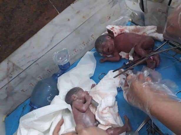 Imagem dos dois sétuplos logo após o nascimento