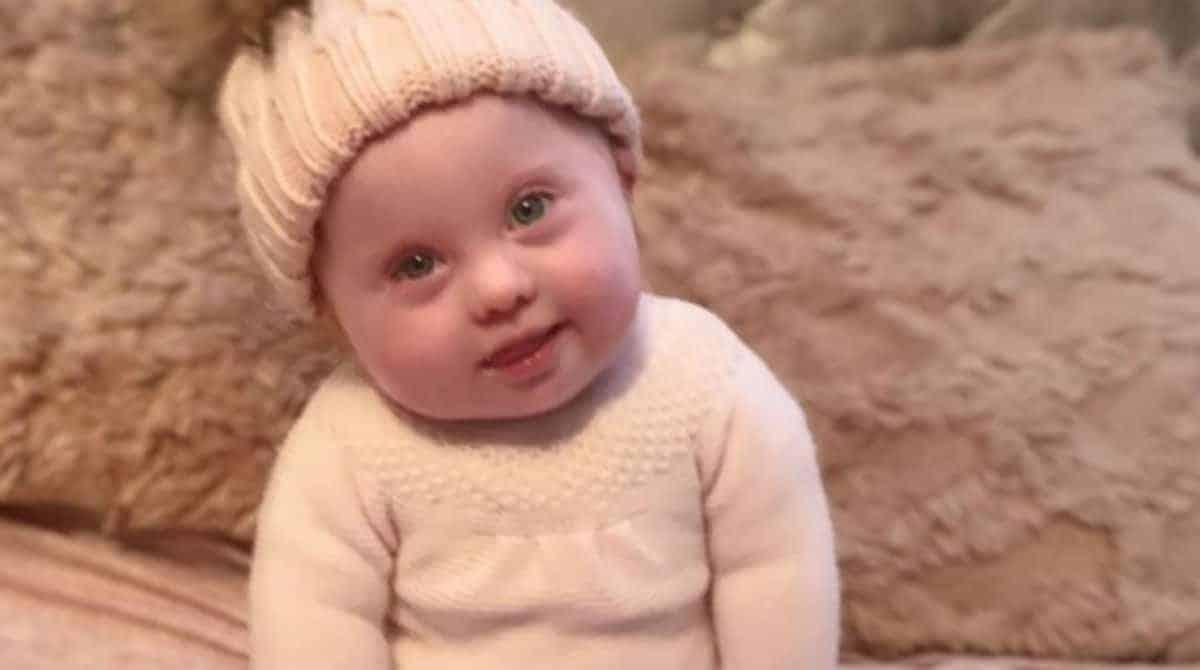 Bebê com Síndrome de Down foi atacada na internet