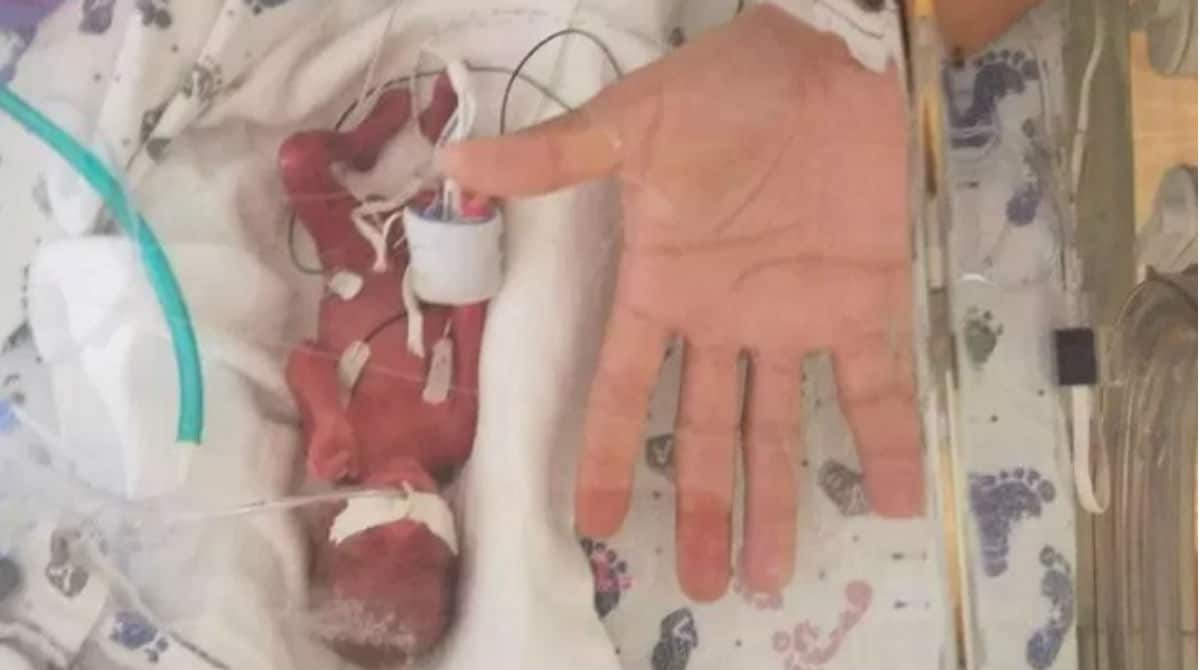 Bebê que nasceu extremamente prematuro, do tamanho da palma da mão