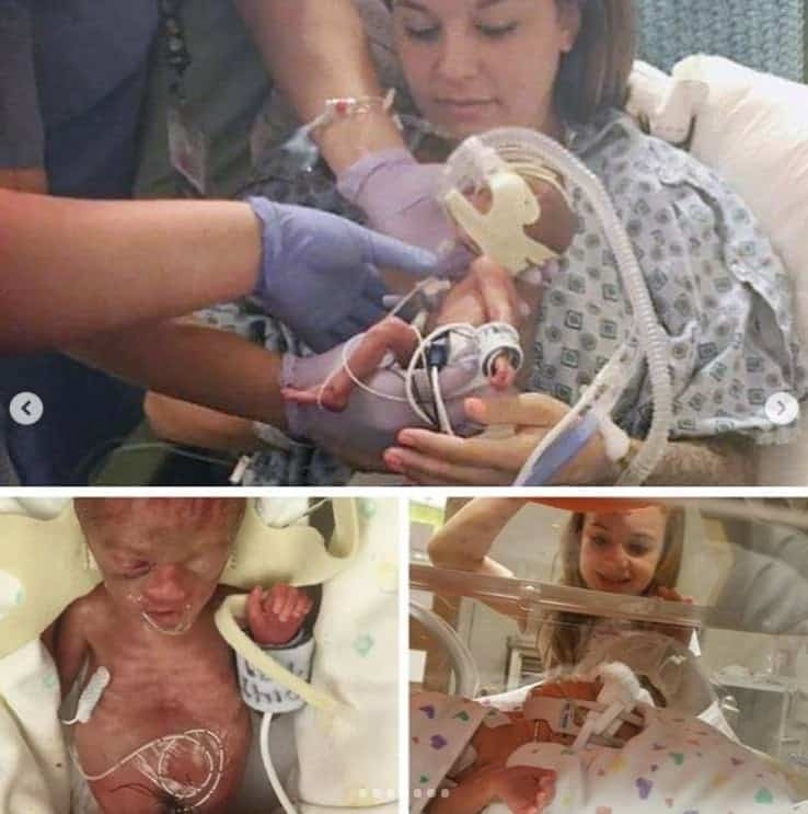 Bebê nasceu extremamente prematuro e superou expectativas