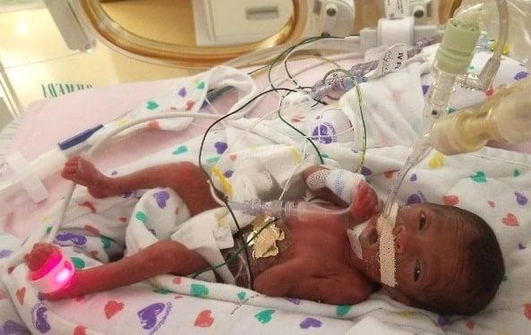 O bebê Sa´Briyah foi um dos sobreviventes do Florence