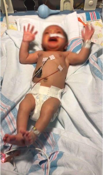 Um dos bebês vítima da síndrome de abstinência