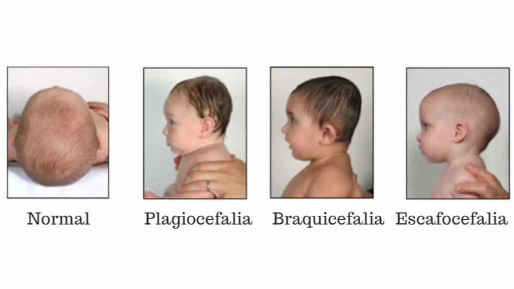 Plagiocefalia, Braquicefalia e Escafocefalia