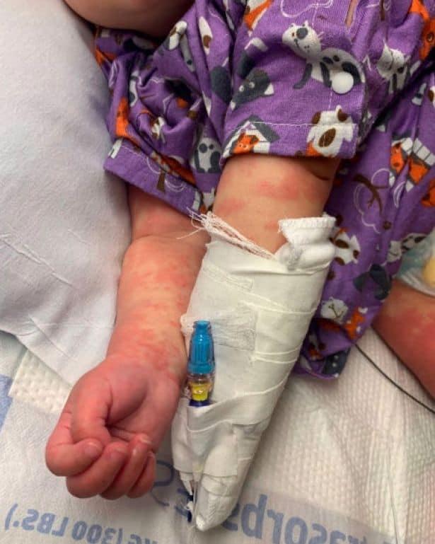 Um dos sintomas da nova complicação do coronavírus que afeta crianças