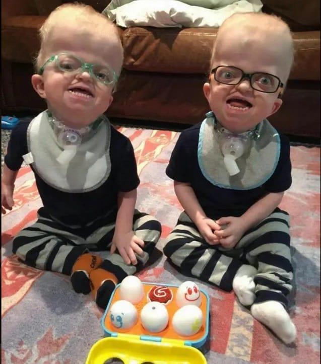 Bebês gêmeos especiais que enfermeira adotou