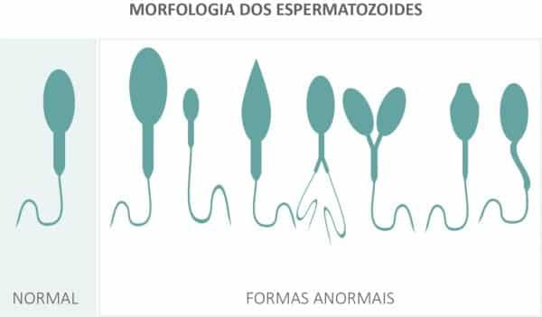 O espermograma analisa a saúde do espermatozoide