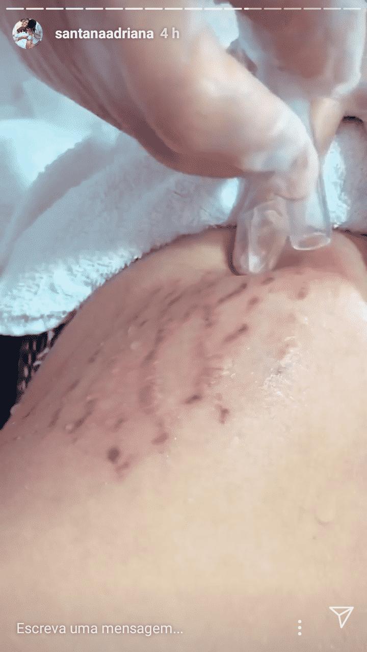 Adriana Sant´Anna publicou seu tratamento de estrias