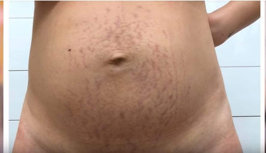 Essa é a imagem da barriga no pós-parto da youtuber