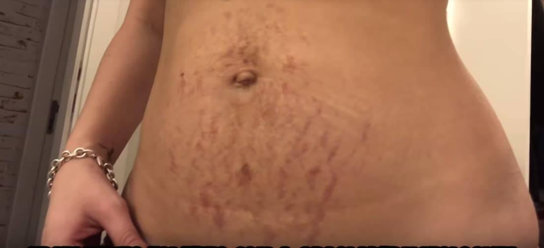 A youtuber também mostrou sua barriga após dar à luz